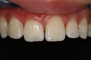 Dentcenter - Előtte, utána állapot